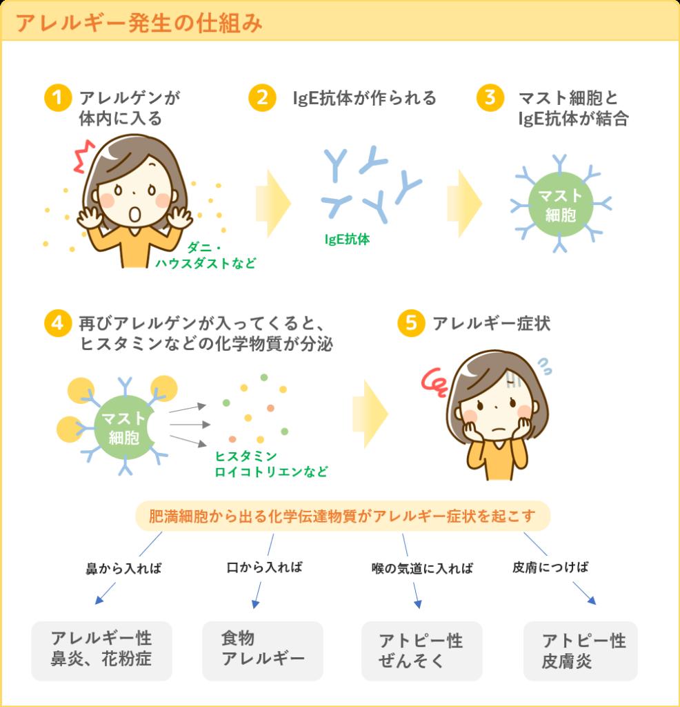アレルギー発生の仕組み
